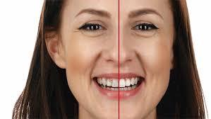 Curiosa di vedere come sará il tuo nuovo sorriso?  Da noi oggi puoi vedere come apparirá il suo nuovo sorriso