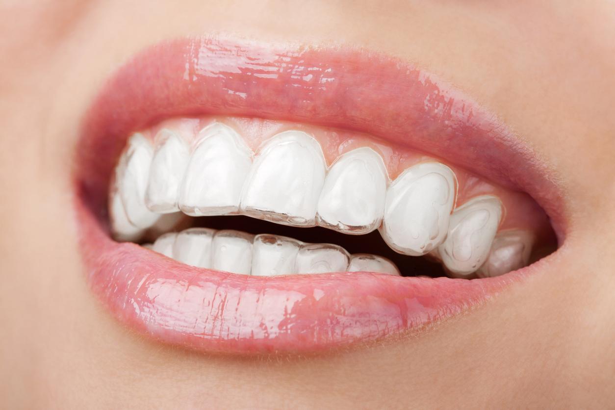 Ritrova il tuo sorriso con le mascherine ortodontiche invisibili