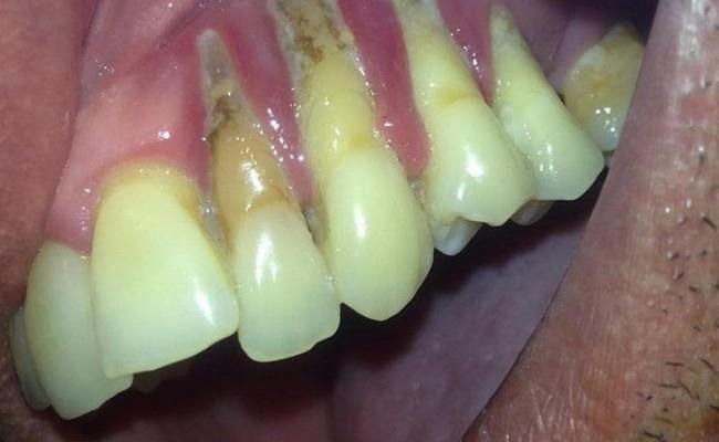 denti-affeti-di-parodontosi-650x400