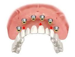 dentista-bellinzona-arcata-fissa