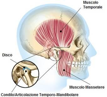 dentista-bellinzona-articolazione-temporo-mandibolare