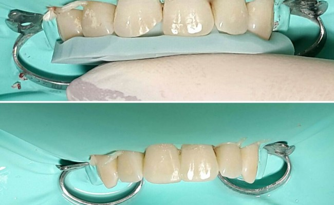 dentista-bellinzona-conservativa-estetica-funzionale-3-650x400