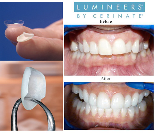 dentista-bellinzona-faccette-dentali-lumineers