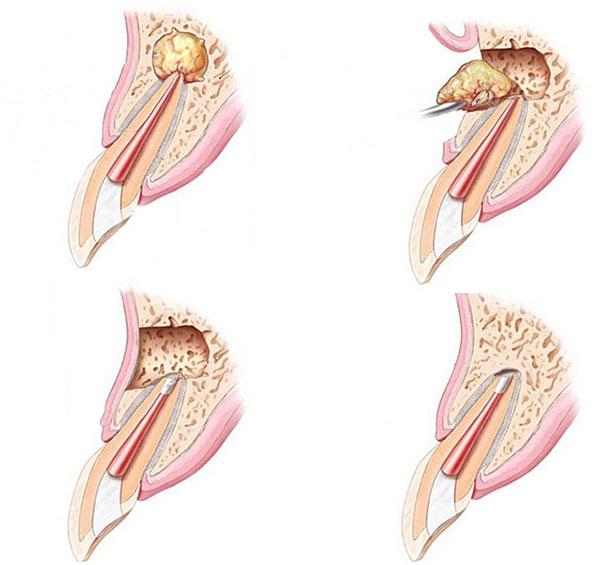 dentista-bellinzona-fasi-apicectomia