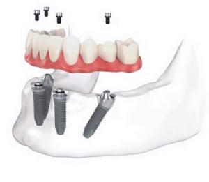 dentista-bellinzona-impianti-dentali
