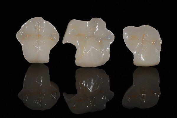 dentista-bellinzona-intarsi-dentali