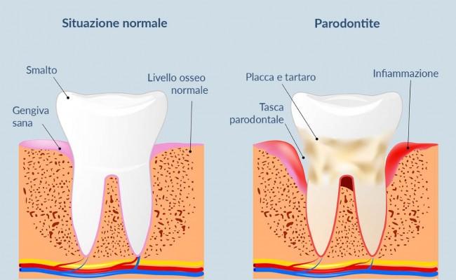 dentista-bellinzona-parodontite-650x400