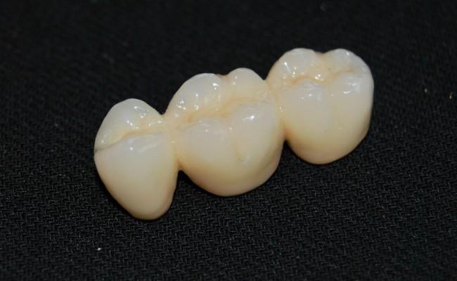 dentista-bellinzona-poliammide-con-fibra-650x400