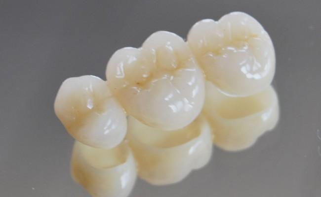 dentista-bellinzona-poliammide-provvisoria-650x400