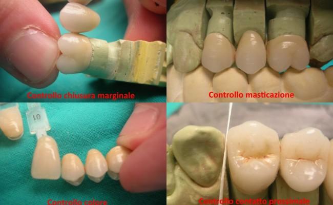 dentista-bellinzona-protesi-fissa-composizione-scritte-650x400