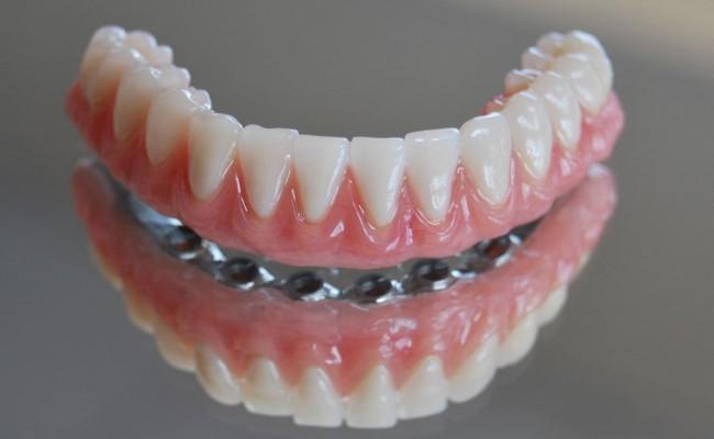 dentista-bellinzona-protesi-mobile-toronto-650x400