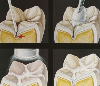 dentista-bellinzona-sigillatura-dei-solchi