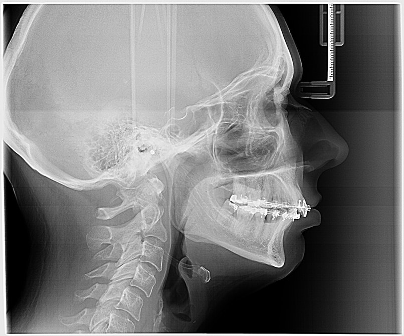 head-profile-x-ray-teeth-with-braces-for-orthodont-Q6SMQEF