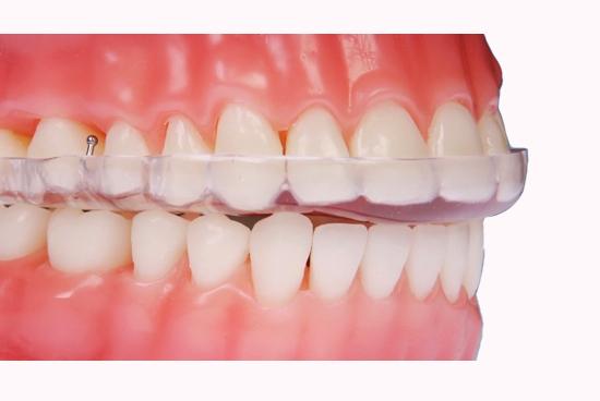 dentista-bellinzona-bite-per-dolori-articolari