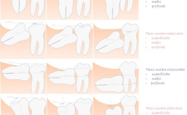 dentista-bellinzona-chirurgia-orale-1-650x400