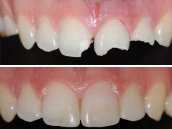 dentista-bellinzona-conservativa-estetica-funzionale-1