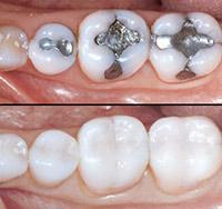 dentista-bellinzona-conservativa-estetica-funzionale