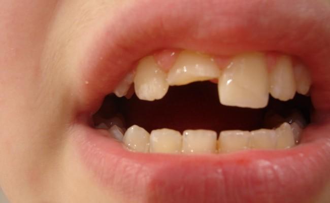 dentista-bellinzona-dente-rotto-650x400