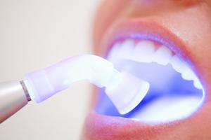dentista-bellinzona-sbiancamento-dentale