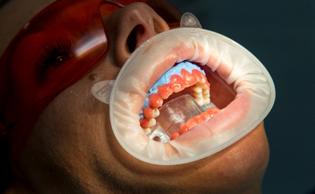 dentista-bellinzona-sbiancamento-denti-650x400