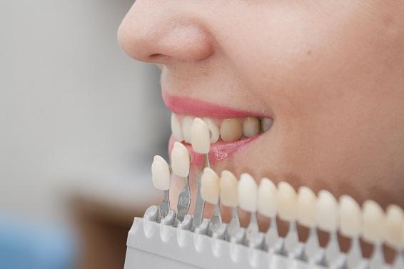 Choice of color of a dental artificial limb.  Close-up