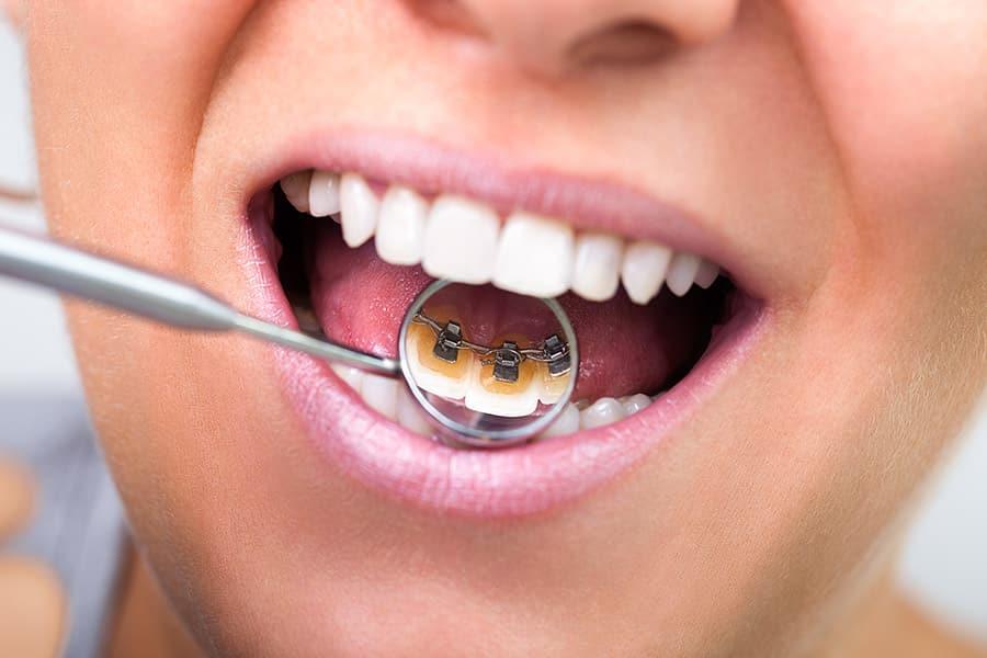ortodonzia-linguale
